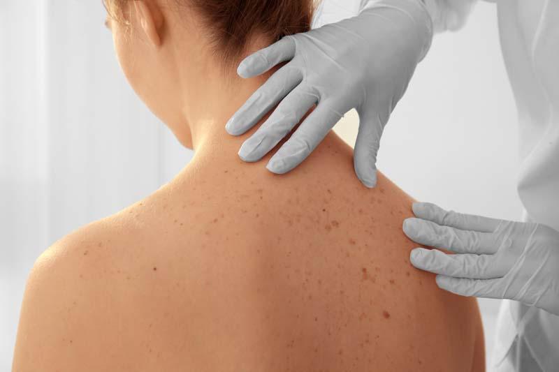 dermatologia curitiba